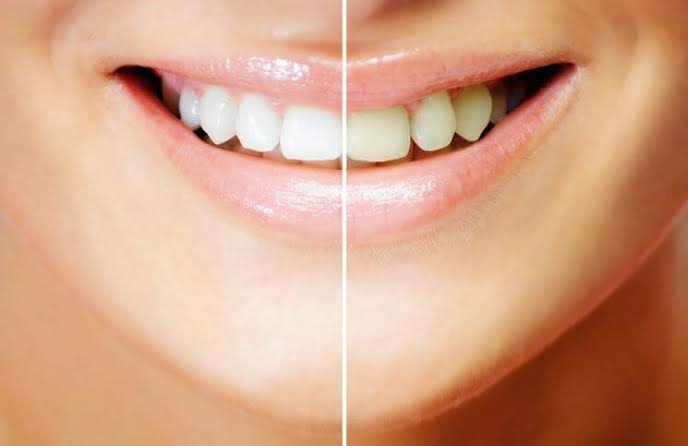 Home remedy for teeth whitening